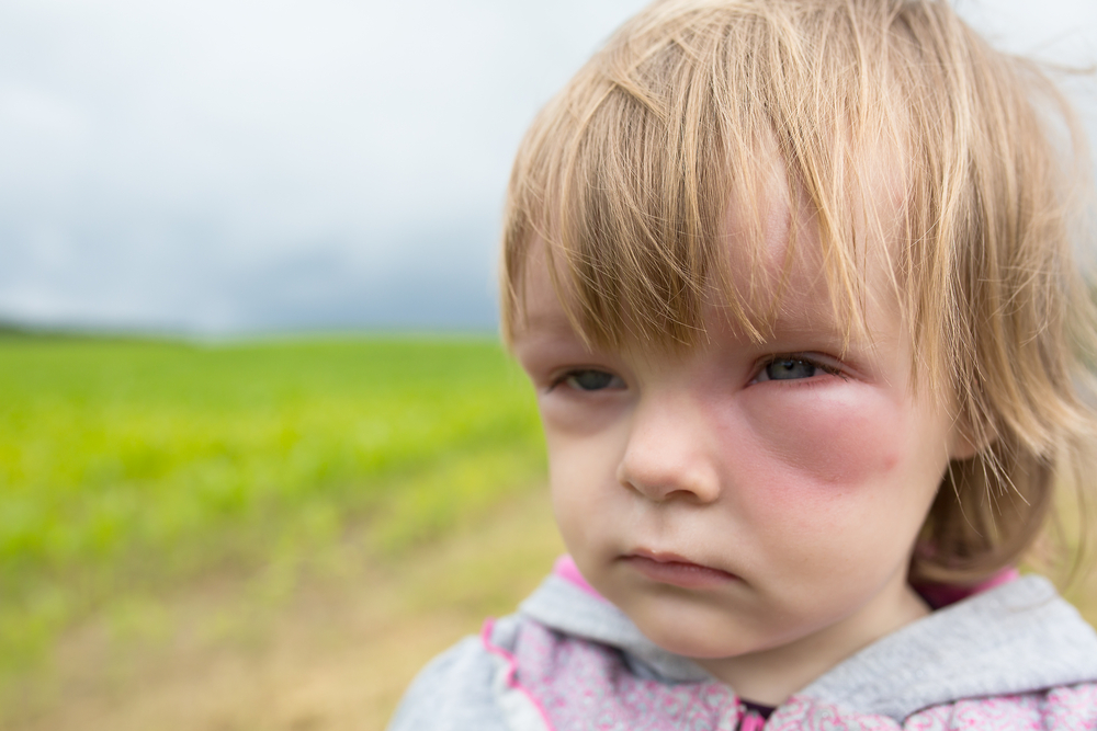 Mosquito bite allergic reaction eye little girl